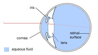 The Halo Phenomenon After Laser Eye Surgery